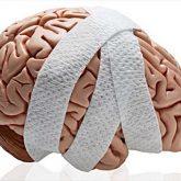Los Mejores Abogados en Español de Lesiones Cerebrales Para Mayor Compensación en El Monte California